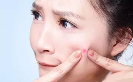 别乱用痔疮膏治痘痘我们说的痘痘一般指青春痘,也叫痤疮,是一种毛囊皮脂腺的感染性炎症,好发于青少年。起痘的原因主要与青春期内分泌改变、皮脂分泌旺盛,以及毛囊内丙酸痤疮杆菌