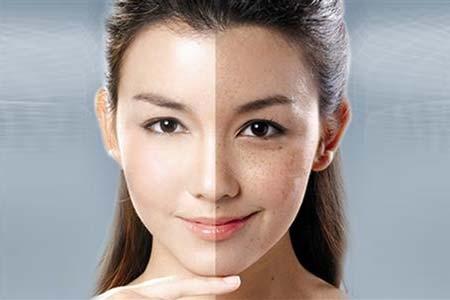 """脸上色斑过多是怎么形成的呢医学证明:""""脸上有斑点,体内淤块,有斑必有淤,治淤不离血。""""体内不同部位的气滞血瘀就会在面部相对应的部位显现出来,也就形成了斑点。当人体内分泌紊"""